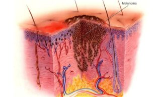 'Immunotherapy, The Most Prominent Topic In Skin Cancer Research' image